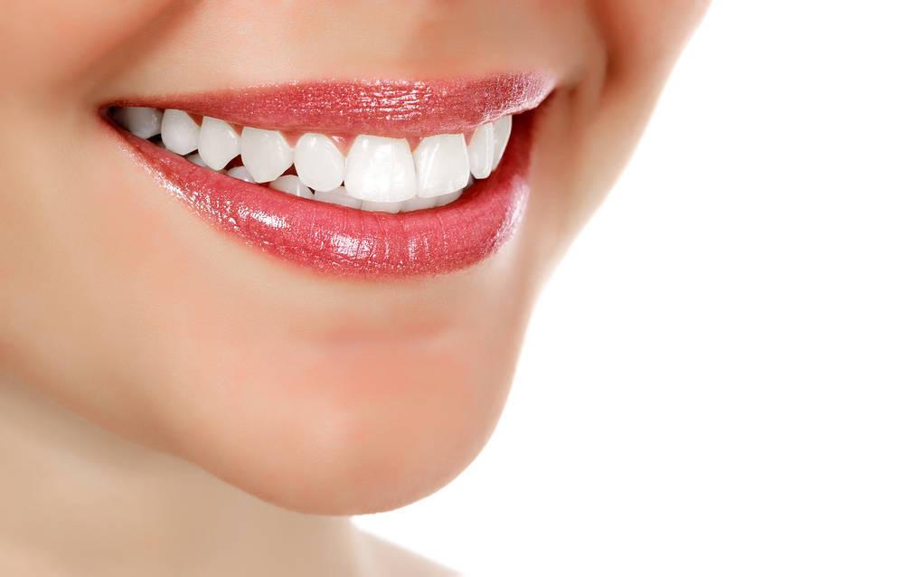 La estética dental: Qué es y para qué sirve